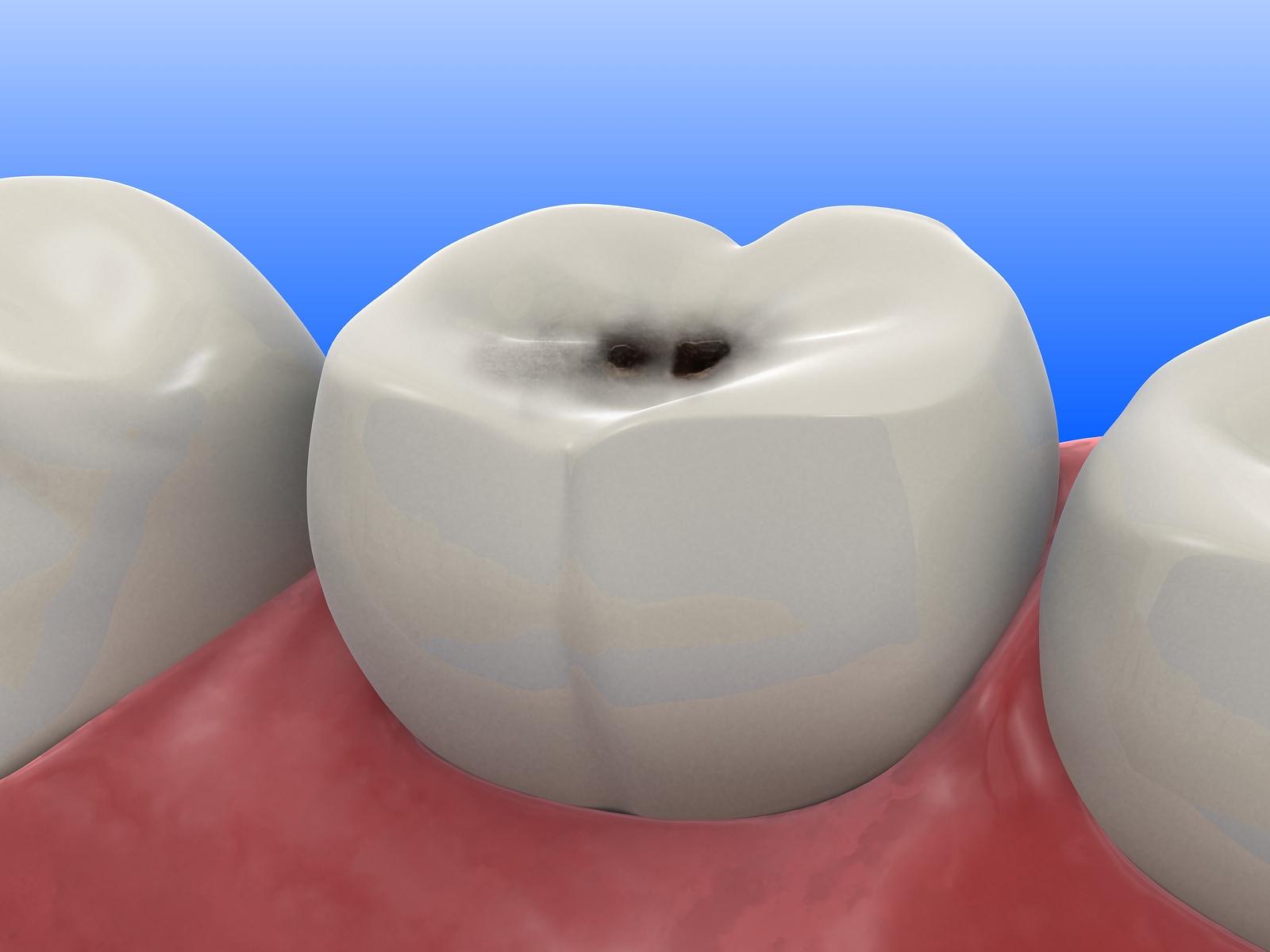Imagem de uma simulação de um dente com Carie