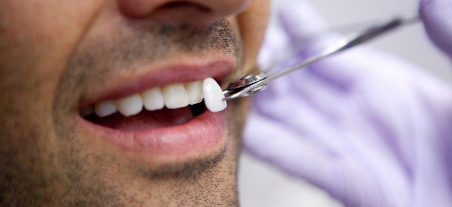 Lente de contato dental em boca masculina