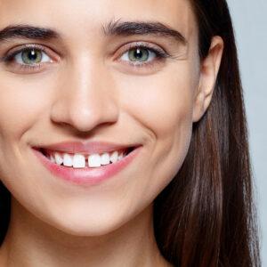 Mulher sorrindo com diastema