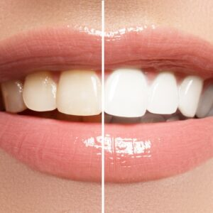 Comparativo de boca com e sem facetas de porcelana