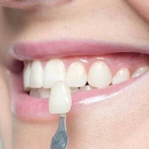 Lente de contato dental em uma mulher