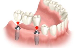 ilustração de implante dentario