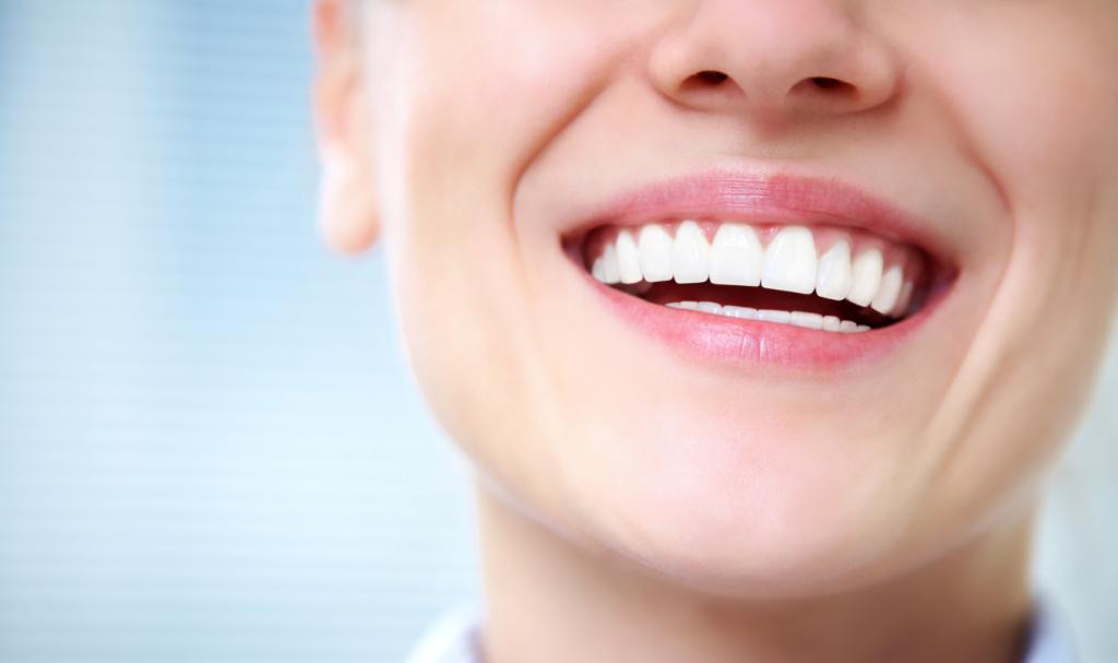 Sorriso de uma mulher com dentes brancos