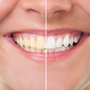 Comparativo de uma boca com e sem clareamento dental