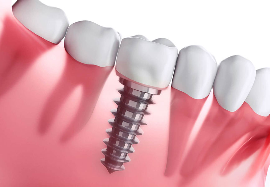 Imagem de implante dentario